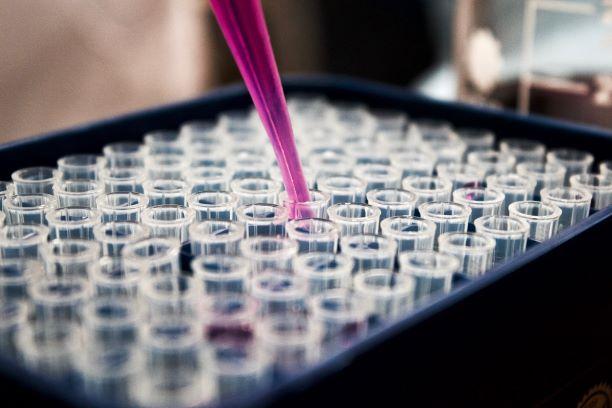 Integrierte Finanzplanung in der Pharma Industrie
